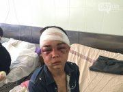 ველური უკრაინა: მამაკაცებმა მხეცურად აწამეს და გააუპატიურეს ყმაწვილი